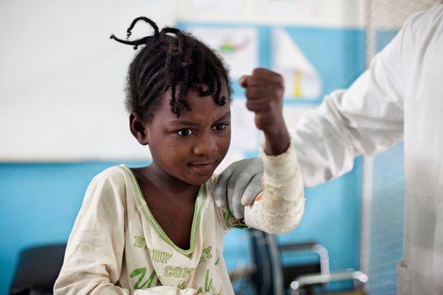 De kleine Mary krijgt fysiotherapie om haar herstel te versnellen. ©Albert Masias